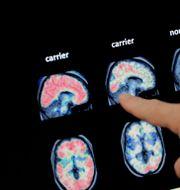 Illustrationsbild. Röntgenbilder på hjärnor som visar tecken på Alzeimers.  Matt York / TT NYHETSBYRÅN