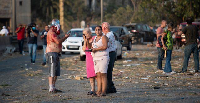 Bild på skadade människor i Beirut.  Hassan Ammar / TT NYHETSBYRÅN