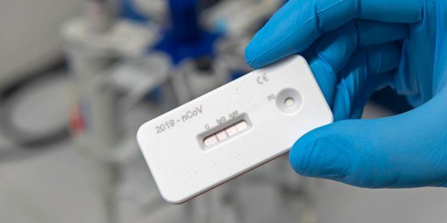 Test för antikroppar mot coronaviruset. Jens Meyer / TT NYHETSBYRÅN