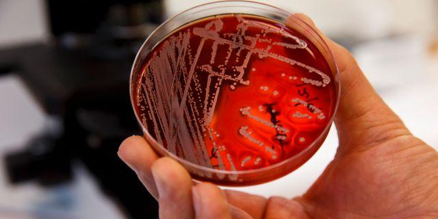 Antibiotikaresistente bakterier Poppe, Cornelius / TT NYHETSBYRÅN