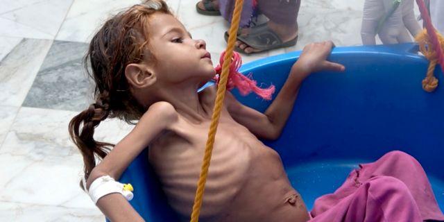 En kraftigt undernärd flicka vägs i Jemen den 25 augusti i år. Hammadi Issa / TT NYHETSBYRÅN/ NTB Scanpix