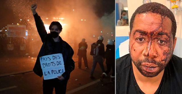 En demonstrant i Paris, Michel Zecler efter polismisshandeln.  TT/AP