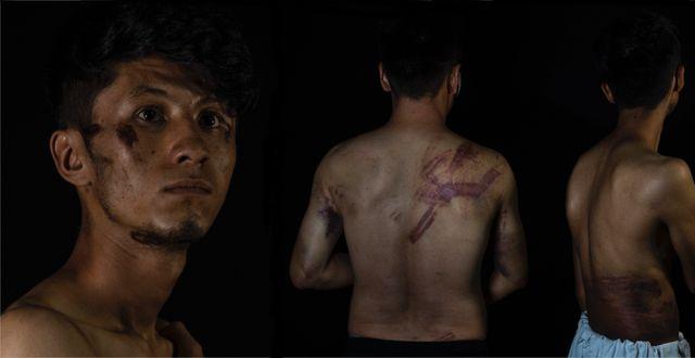 Journalisterna Taqi Daryabi och Neamatullah Naqdi visar upp sina skador. Montage. TT