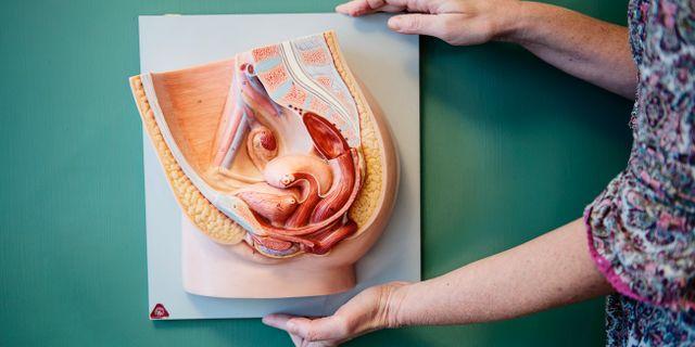 En anatomisk modell av en livmoder.  Pi Frisk / SvD / TT / TT NYHETSBYRÅN