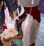 Skadad kvinna som lyckades fly från Aksum i Tigray i norra Etiopien/Arkivbild TT NYHETSBYRÅN