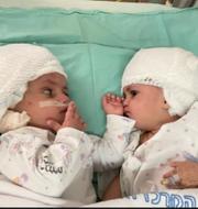 Tvillingarna såg varandra för första gången under söndagen.  Soroka University Medical Center