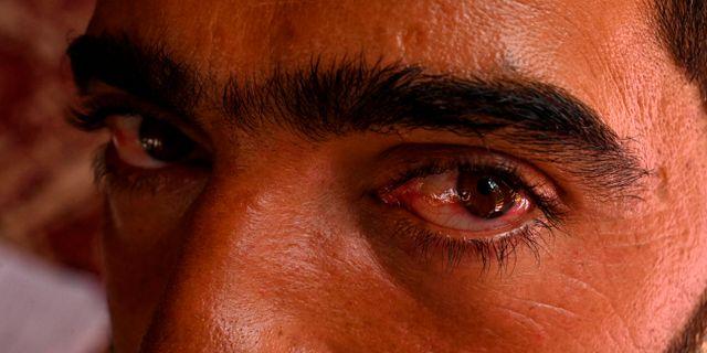 Abid Khan blev misshandlad av indiska soldater, säger han.  TAUSEEF MUSTAFA / AFP