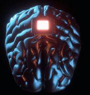 Hjärnimplantat – är det arvtagaren till våra smartphones? Shutterstock