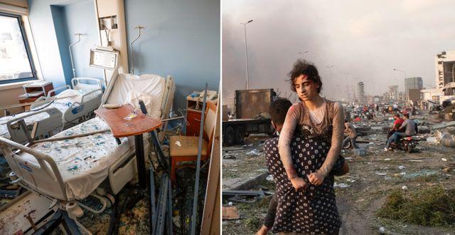 En sjukhussäng i ett förstört sjukhus i Beirut/En skadad kvinna evakueras efter explosionerna  TT