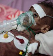 Undernärd flicka på sjukhus i Jemen.  Hani Mohammed / TT NYHETSBYRÅN
