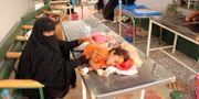 En flicka sjuk i kolera på vårdcentralen i Islim i Hajjah–provinsen i Jemen.  Eissa Alragehi /Reuters / TT