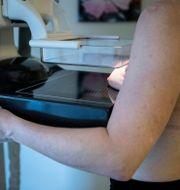 Mammografi.  Christine Olsson/TT / TT NYHETSBYRÅN