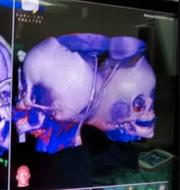 Läkarna har lyckats återskapa 3D-modeller av flickornas kranium. Soroka University Medical Center