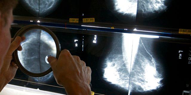 Bilder från mammografi. Arkivbild. Damian Dovarganes / AP