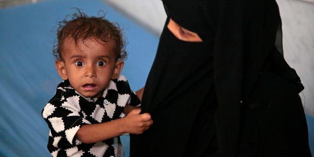 Ett undernärt barn på en klinik i Hodeidah, 27 september. Hani Mohammed / TT NYHETSBYRÅN/ NTB Scanpix