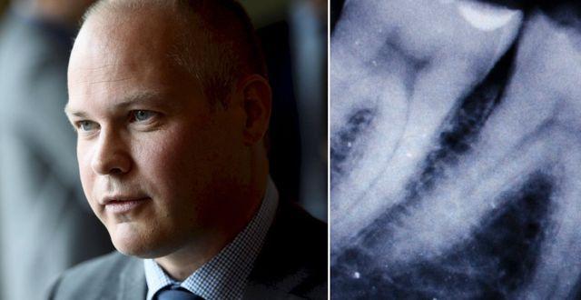 Morgan Johansson t v, röntgenbild av tänder till höger (arkivbild)  TT