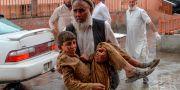 En skadad pojke tas om hand efter bombdådet. NOORULLAH SHIRZADA / AFP