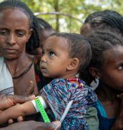 Ett barn som undersöks i Tigray. TT NYHETSBYRÅN