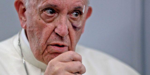 Påve Franciskus har blåmärken efter en olycka med påvemobilen. POOL / TT NYHETSBYRÅN