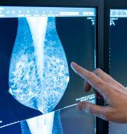 En läkare tittar på bröströntgenbilder, mammografibilder. Christine Olsson/TT / TT NYHETSBYRÅN