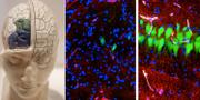 Forskarnas bilder visar skillnaden mellan en hjärna som fått behandlingen och en som inte fått det.