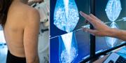 Mammografiundersökning.  TT
