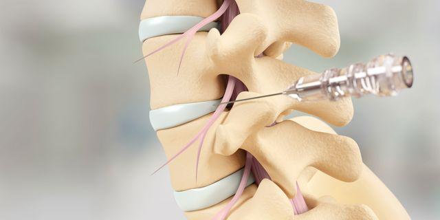 Det finns ett enormt gap mellan de 30% av patienterna som blir bättre av smärtstillande och sjukgymnastik och det lilla antalet som genomgår ryggkirurgi. Stayble Therapeutics målsättning är att hjälpa de miljontals patienter som idag är utan fungerande vård.