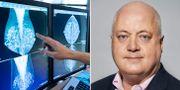 En läkare tittar på bilder från mammografi/Jan Zedenius.  TT/Cancerfonden/Andrea Björsell.