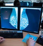 Läkare tittar på mammografibilder. Christine Olsson/TT / TT NYHETSBYRÅN