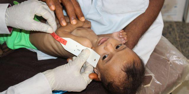 Sju månader gamla Issa Ibrahim Nasser undersöks på en klinik i Deir Al-Hassi i Jemen. Han väger bara tre kilo. Issa Al-Rajhi / TT NYHETSBYRÅN