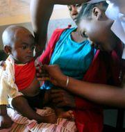 Barn med mässling kontrolleras på Madagaskar. Laetitia Bezain / TT NYHETSBYRÅN/ NTB Scanpix
