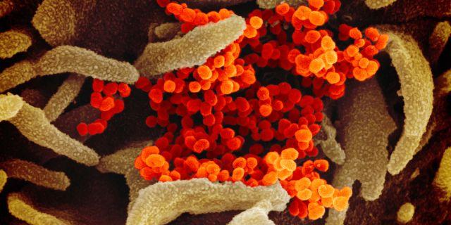 Mikroskopbild på coronaviruset sars-cov-2 TT NYHETSBYRÅN