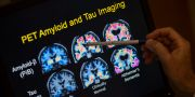 Hjärnscanning i Alzheimerforskning. Evan Vucci / TT NYHETSBYRÅN/ NTB Scanpix