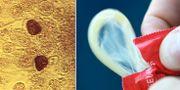 Klamydiabakterie/kondom.  TT