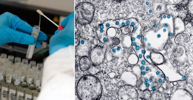 Coronaviruset syns som blå prickar i ett prov från en covid-19-patient. Bilden är tagen med ett elektronmikroskop. TT