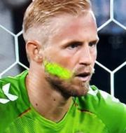 Laser i Kasper Schmeichels ansikte.