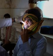 En man med mukormykos undersöks av läkare i Indien. Mahesh Kumar A / TT NYHETSBYRÅN