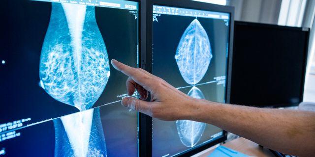 Bröströntgenbilder. Arkivbild. Christine Olsson/TT / TT NYHETSBYRÅN