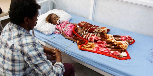 En pappa vakar över på sjukhus över sin undernärda 7-åriga dotter. Flickan dog senare. ABDULJABBAR ZEYAD / TT NYHETSBYRÅN