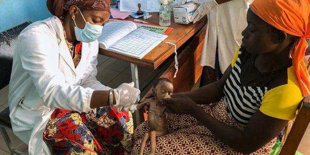 En månader gamla Haboue Solange Boue i Burkina Faso har redan förlorat halva sin födelsevikt.  Sam Mednick / TT NYHETSBYRÅN