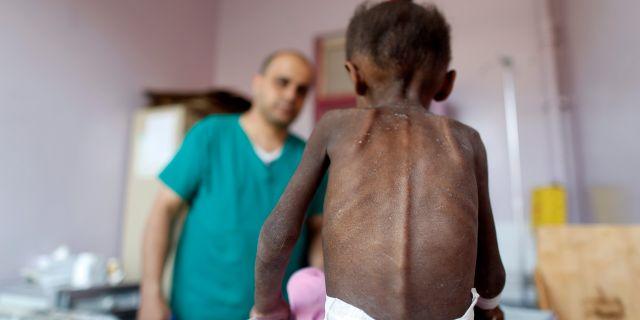 En sjuksköterska undersöker en undernärd flicka på en klinik i Jemens huvudstad Sanaa. Khaled Abdullah / TT NYHETSBYRÅN