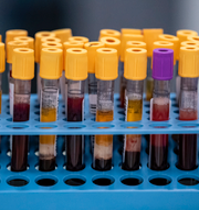 Rinkeby-Kista stadsdelsförvaltning / Blodprover som ska analyseras för antikroppar mot covid-19 TT