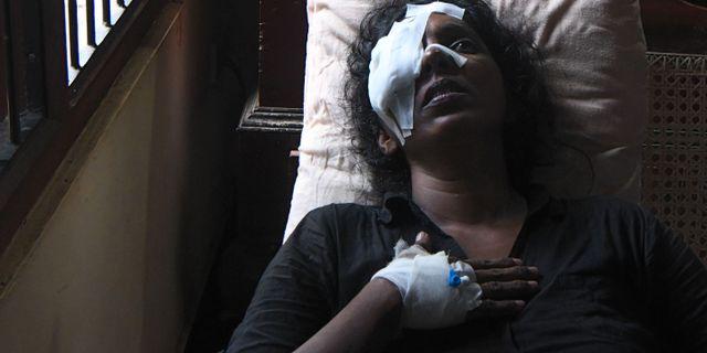 Anusha Kumari 43, en av de skadade i terrordådet i Sri Lanka. LAKRUWAN WANNIARACHCHI / AFP