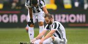 Skadade Gonzalo Higuain  MARCO BERTORELLO / AFP