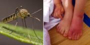 Mygga och myggbett. Arkivbilder. TT