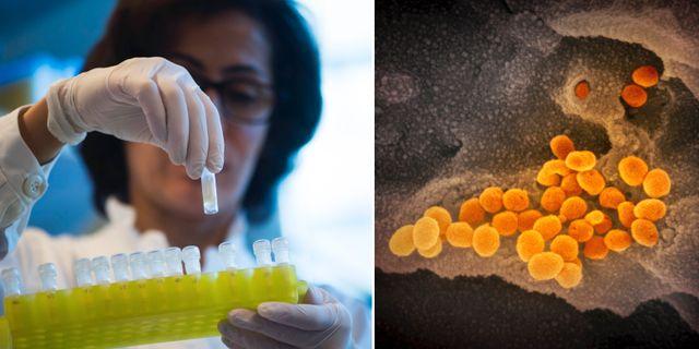 DNA-prov/Coronaviruset i elektronmikroskop TT