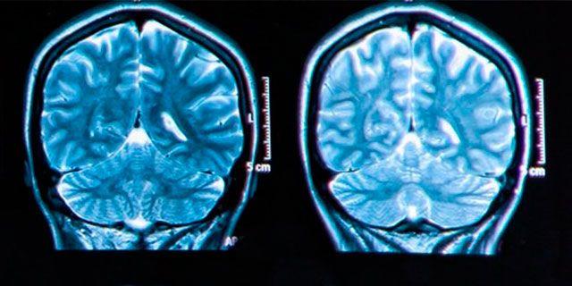 PostNord har tillsammans med Ipsos och Neurons Inc genomfört den första neuromarketingstudien i Norden. Foto: Colourbox