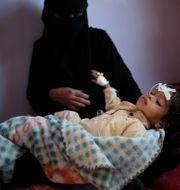 Undernärt barn på sjukhus i Saana, Jemen/Arkivbild Hani Mohammed / TT NYHETSBYRÅN