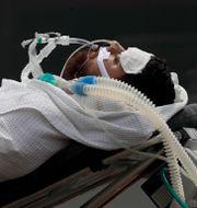 En patient med covid-19 i huvudstaden Brasilia.  Eraldo Peres / TT NYHETSBYRÅN