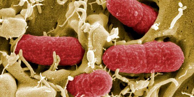 Ehec-bakterier HO / X80001